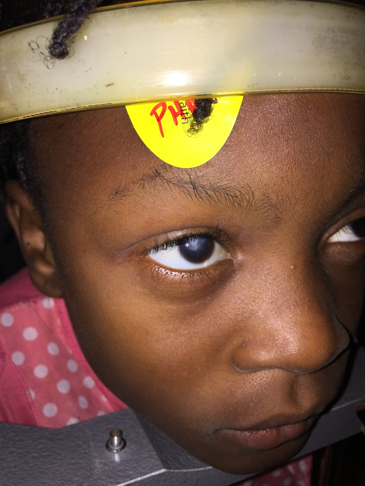 9 year old girl with cataract in her right eye.